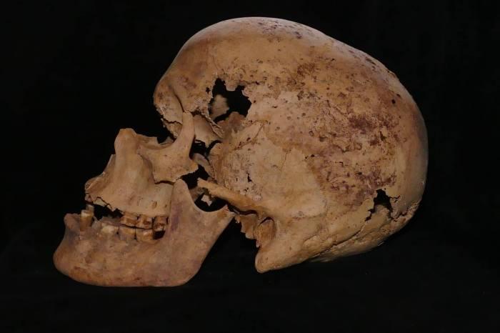 bone cancer transfer to skull