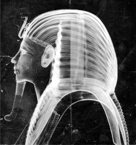 X-Ray+1960s+1B+-+Photo+courtesy+of+Francis+Amin